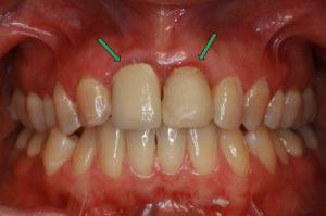 Zähne vor Eingriff