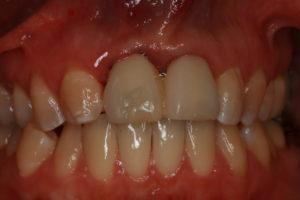 Wieder schöne feste Zähne - vor Eingriff