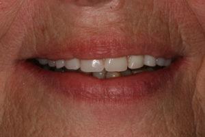 Wieder schöne feste Zähne