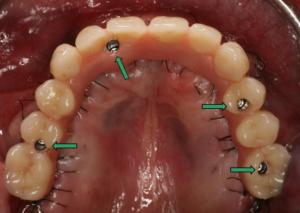 Wieder schöne feste Zähne - Implantate