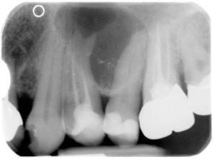 Röntgenbild Zystenwachstum