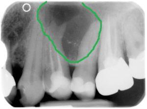 Röntgenbild Zystenwachstum mit Markierung
