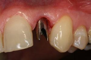 Festsitzender Zahnersatz Titanaufbau