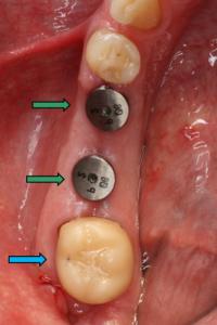 Festsitzender Zahnersatz - Versorgung einer größeren Schaltlücke