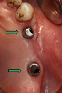 Festsitzender Zahnersatz - Versorgung von Freiendsituationen