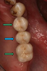 Festsitzender Zahnersatz Versorgung von Freiendsituationen