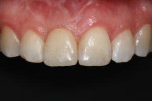 Zustand nach Zahnimplantat
