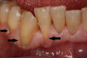 Rezessionen/freiliegende Zahnhälse - Zustand vor Zahnfleischverpflanzung