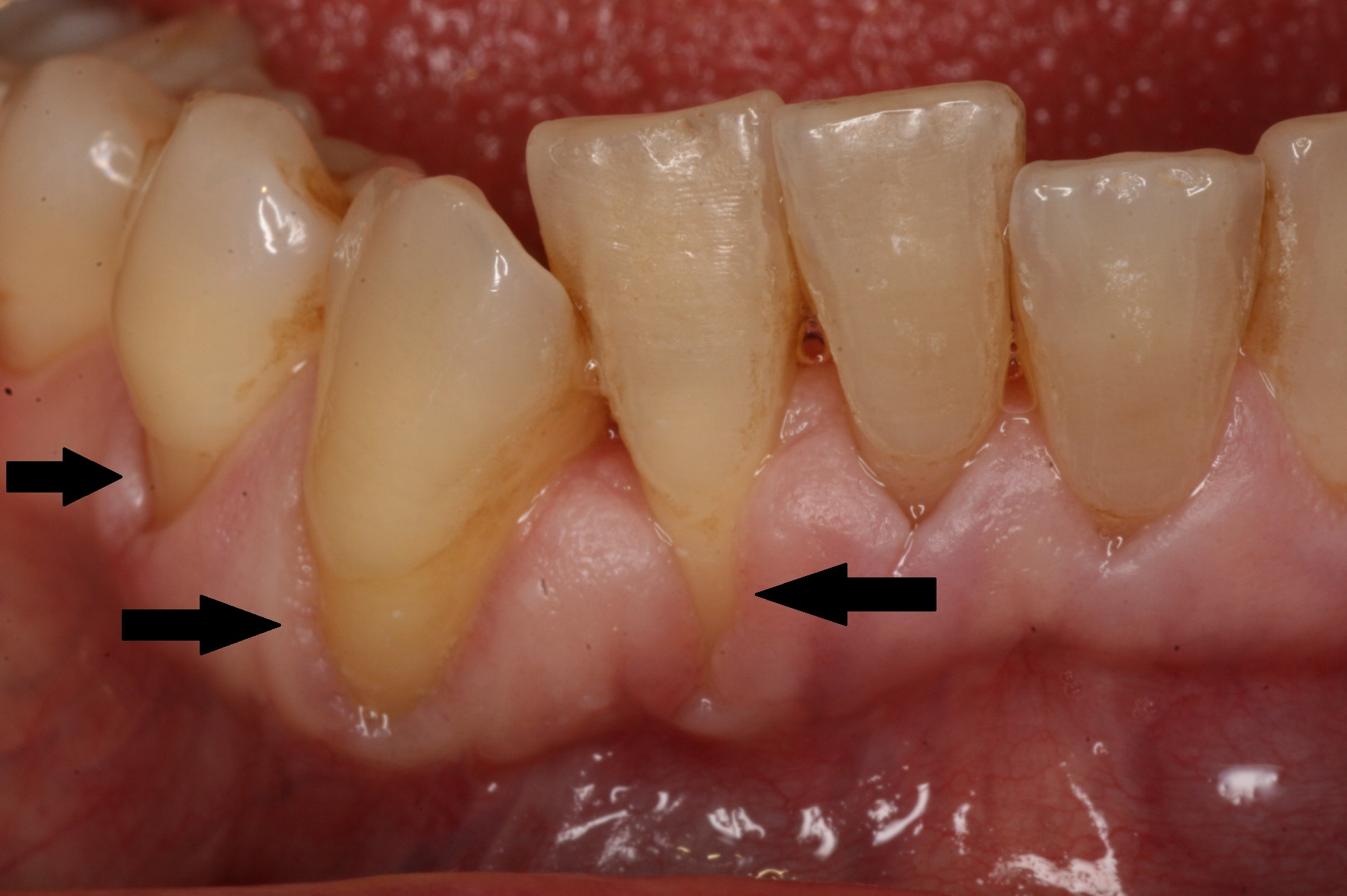 Zahnfleischrückgang was tun