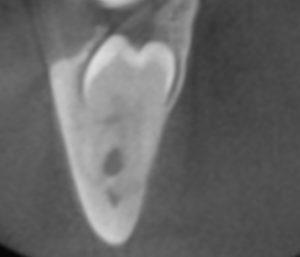 3D-Röntgentechnik (DVT) bei unklare Lage des Weisheitszahnes und Verlauf des Nervs