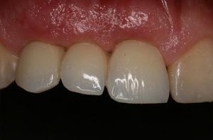 Zustand nach Zahnentfernung mit Implantaten